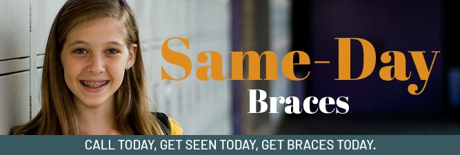Same day braces special coupon