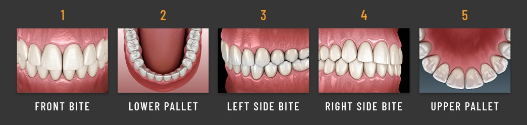 5 different angles of teeth