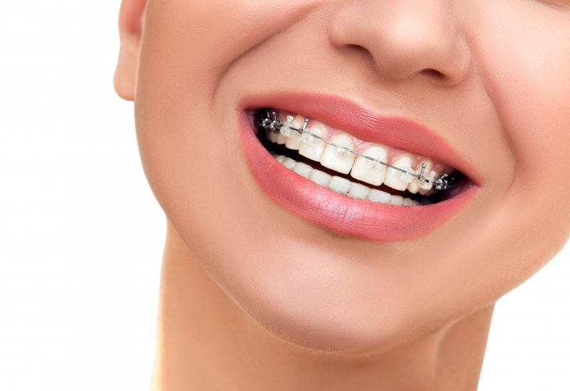 Orthodontist in Rochester | Orthodontic Emergency | Drabik ...