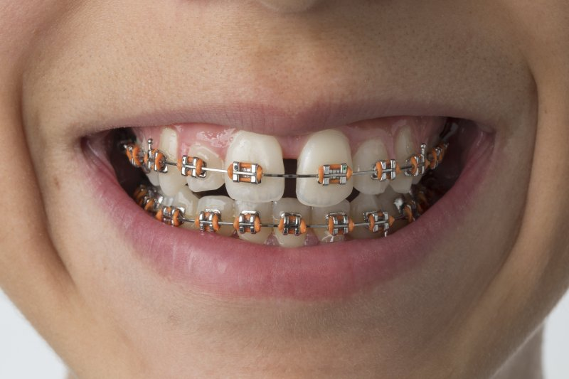 Close-up of mouth and teeth with dental braces