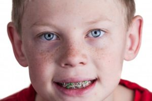 Boy smiling with braces from orthodontist in Rochester